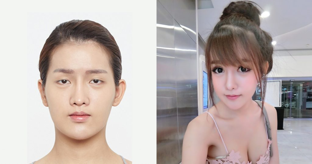 Thailand transsexual surgery before and after